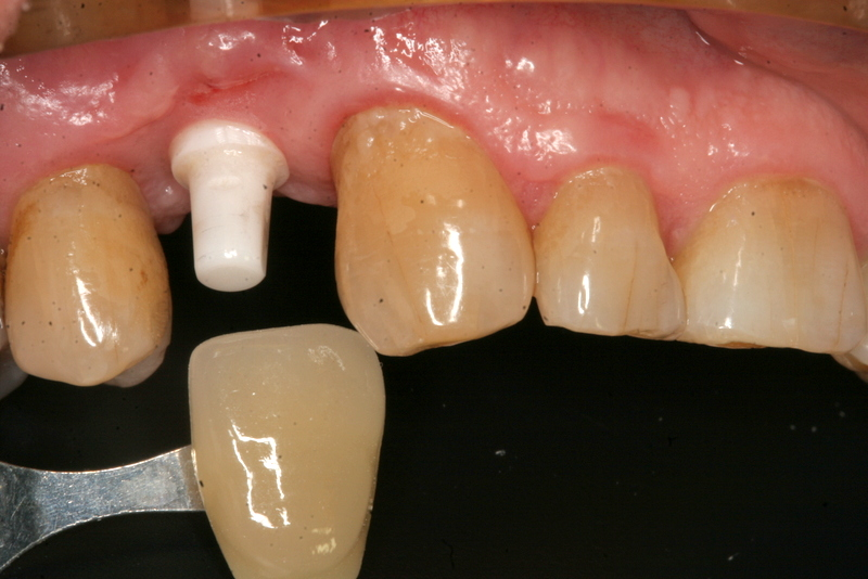 upper premolar color match