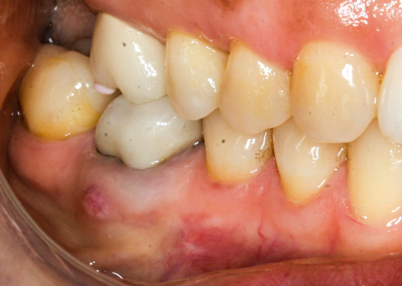 Zirconia implants - before extraction