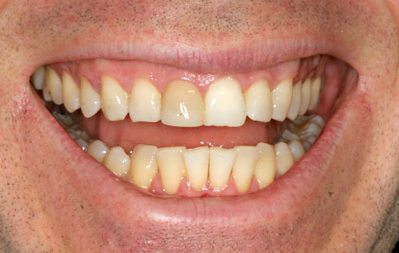 Alex discolored tooth with bone infection