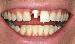 Upper_Anterior_Tooth_1