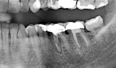 lower-molar-3